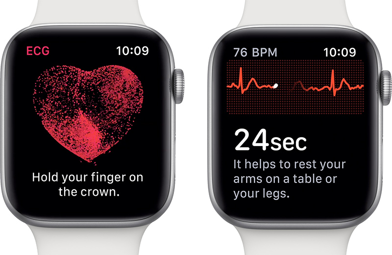 applewatchseries4ecgfeature - watchOS 6 prinesie veľmi žiadanú funkciu