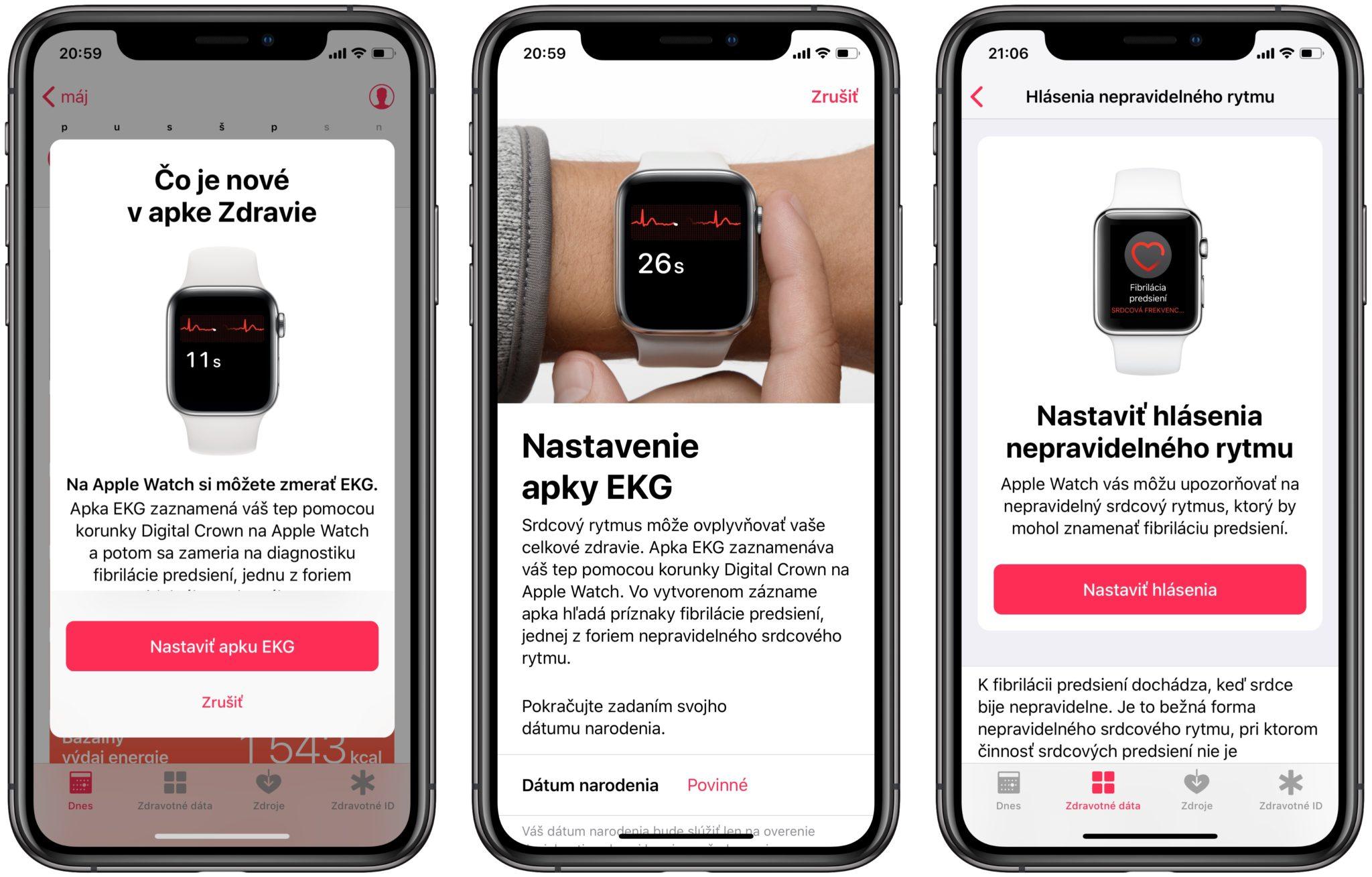 apple watch ako nastavit ekg - Návod: Ako na meranie EKG s Apple Watch